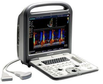 Портативная цветная цифровая ультразвуковая  диагностическая система SonoScape S6